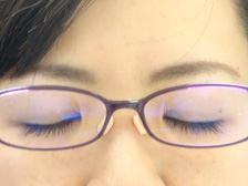 (写真左)メガネをはずすと鼻の横にくっきり跡が!(写真右)パッドを貼りつけましたが、案外目立ちません。弾力性があって快適に!