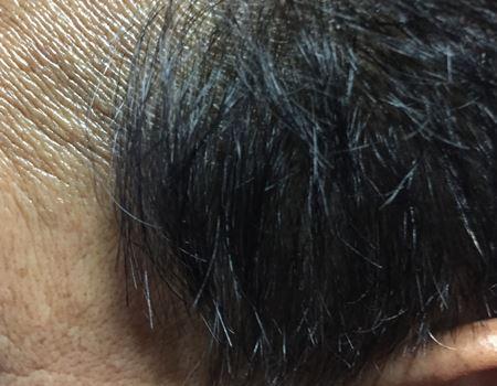 1日空けて、4回目の塗布、そしてシャンプー後。黒髪のほうが勝っています。気のせいか、毛まで増えたように見えます