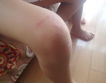 クラゲに刺された直後。この後もっと赤くなり、みみず腫れのようになってしまいました。かなりかゆいそうです