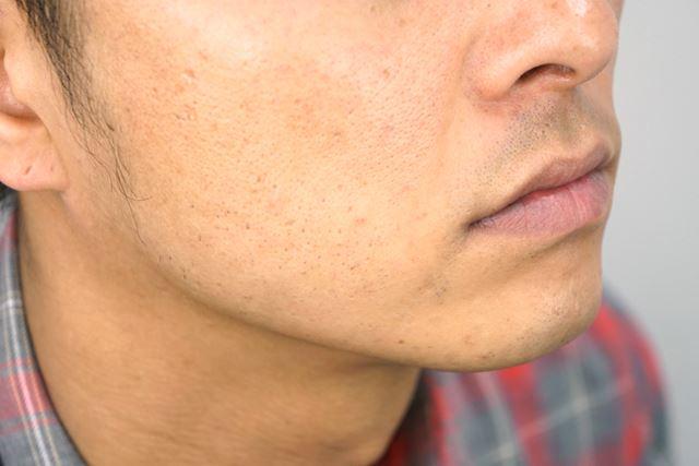 多少あごの端に剃り残しが確認できるが、目立つほどのものでもない