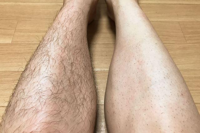 両足を比較