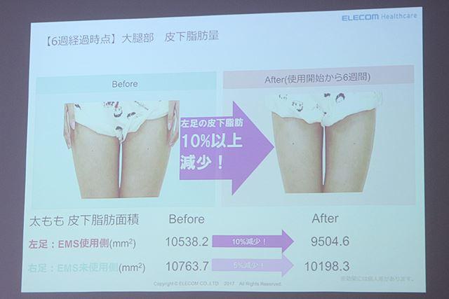 太ももに「エクリア リーン」を6週間使用した結果。皮下脂肪の面積が10%も減少したという