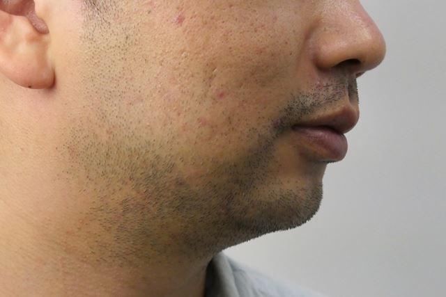 口周り、もみあげからあご、首にかけて芝生のように生えている理想的な濃いヒゲ