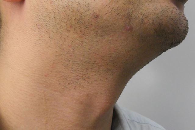 ワンストロークでこの剃り上がり! 試用者は「ちゃんと剃れているのに全然痛くない!」と驚きを隠せない