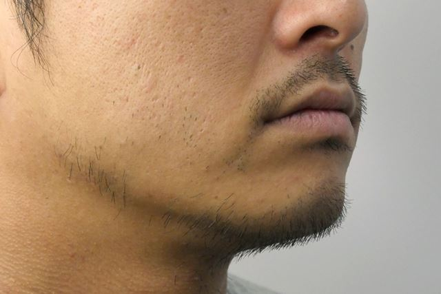 1週間伸ばしたヒゲ。口周りとあご中央に長い毛が集まっている。それ以外は、まだらに長い毛が生えている