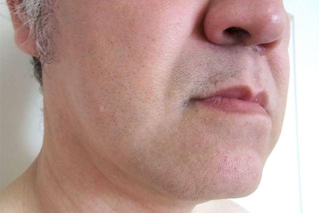 ちなみに、筆者のヒゲそり前とヒゲそり後はこんな感じ