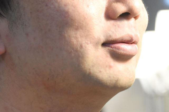 きれいに剃れた。急いで剃ったので数本剃り残しはあるが、肌のヒリつきはなし!