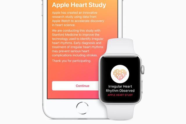 アップルとスタンフォード大学の調査により、「Apple Watch」の医療分野での有用性が明らかに
