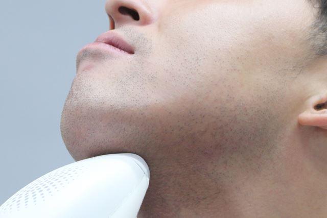 ひげに使用する場合は、ひげ脱毛に対応している機種であるかを必ず確認してください