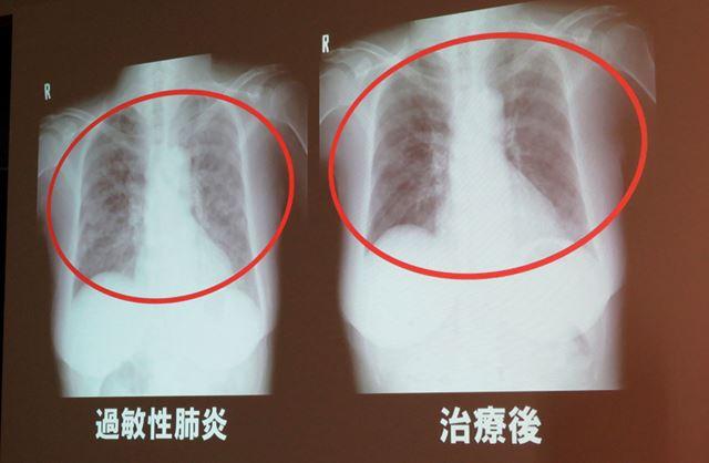 カビが原因の過敏性肺炎を患った方のレントゲン写真。肺に白い影が出ています。苦しそう……