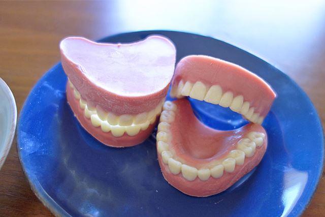 計2体の歯はこのあとスタッフがおいしくいただきました
